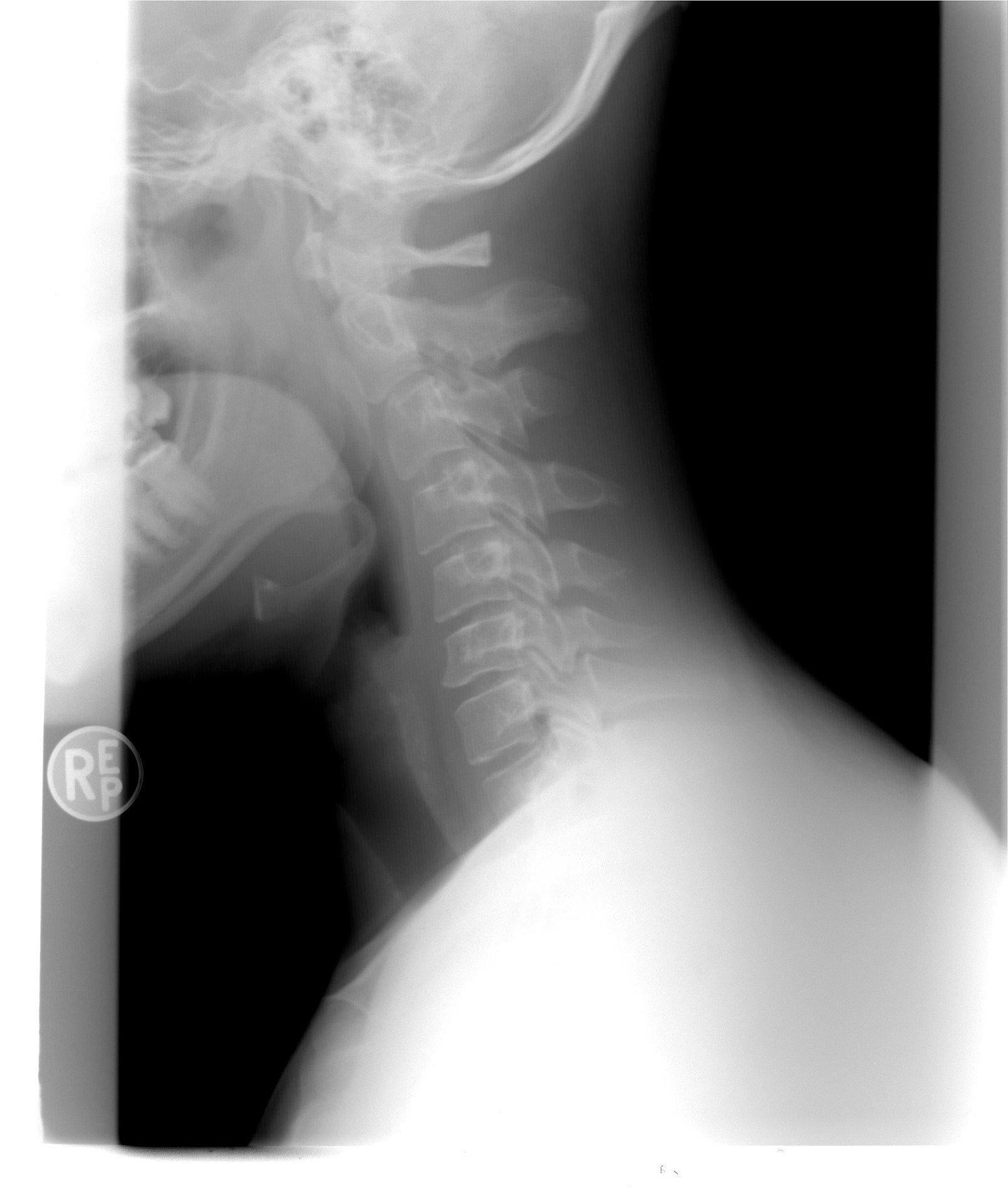 xray neck